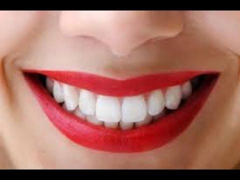 4 Cara Memutihkan Gigi Dengan Garam Secara Tradisional Dan Cepat